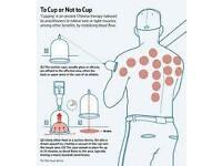 Hijama and Cupping therapy £ 15