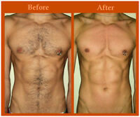 Prof. MALE WAXING / HAIR REMOVAL from CERTIFIED Male Technician