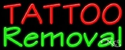 New Tattoo Removal 32x13 Real Neon Sign Wcustom Options 11485