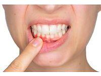 Gum or Periodontal Disease