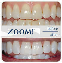 Dental Cleaning, Teeth Whitening, and MORE Save 30% Kitchener / Waterloo Kitchener Area image 8