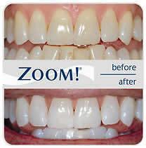Dental Cleaning, Teeth Whitening, and MORE Kitchener / Waterloo Kitchener Area image 8