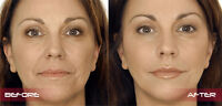 Look NATURAL and younger, botox and dermal fillers!