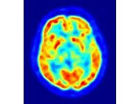 FROM BODY TO MIND STUDY, HEALTHY MALES NEEDED FOR PET SCANS (£300)