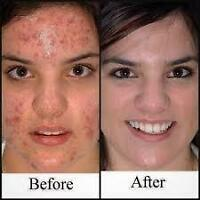 Do you have scars or wrinkles in your face. We can help