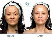 Non-Surgical Facelift