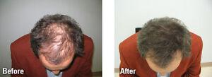 Proven Temporary Hair Loss Solution Regina Regina Area image 1