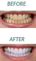Professional dental cleaning only 80