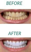 Professional dental cleaning 90