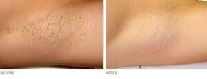 Laser->See The Difference After 1 Session!(STOP >waxing<) 4 ALL