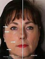 Reduce Wrinkles and Fine Lines Permanently