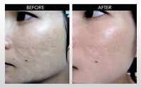 Trade your time for Acne Scars Treatment/s