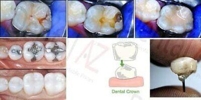 Permanent Tooth Repair White Filling Cement DIY Mega Kit Self Cure Glass Ionomer