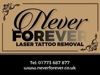 Never Forever Laser Tattoo Removal - Ripley.