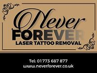 Affordable Professional Laser Tattoo Removal in Derbyshire.