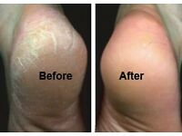 Mobile foot health care £25