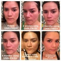 #1 Acne brand in the US! UNBLEMISH