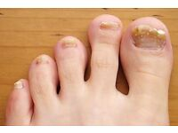 PEDICURE TREATMENTS for FUNGAL INFECTED TOE NAILS.
