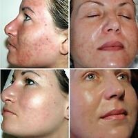 Deep cleansing facial with Microdermabrasion$65 Microneedling175