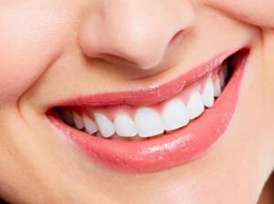 SPECIAL  $ 69 SESSION 1 HEURES BLANCHIMENT DES DENTS Gatineau Ottawa / Gatineau Area image 1