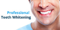 BLANCHIMENT DENTAIRE- 190$ TEETH WHITENING 190$