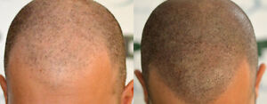 ARE YOU TIRED OF BEING BALD? Kitchener / Waterloo Kitchener Area image 1