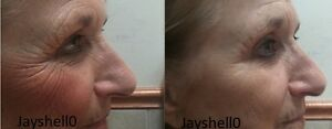 INSTANT-LIFT-FACE-EYE-LIFTING-ANTI-WRINKLE-LINE-CREAM-WORKS-INSTANTLY-30MLs