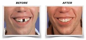 Dental Implants for Replacing Missing Teeth by Smile Stylers