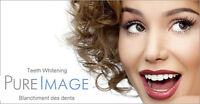 TEETH WHITENING BUSINESS OPPORTUNITY-WHOLESALE