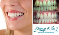 BEAMING WHITE TEETH WHITENING PROFESSIONAL TREATMENT IN SPA $99