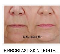 Looking for mature [40 +] clients for my fibroblast diploma