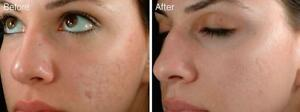 Dermal Needling, Collagen Induction Therapy, Derma Pen West Island Greater Montréal image 1