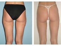 Get Rid Of Cellulite with Ultrasound Cavitation ... In the comfort and privacy of your House !