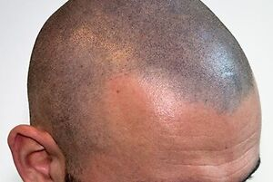ARE YOU TIRED OF BEING BALD? Kingston Kingston Area image 2