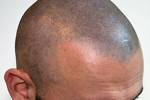 ARE YOU TIRED OF BEING BALD? Cornwall Ontario image 2