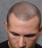 Going Bald? Head Tattoo and Hair Tattoo Treatment - SMP