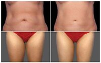 Coolsculpting Style Fat Removal - Cheapest & Best 905-783-7397