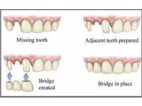 Fixed Dental Bridge by Smile Stylers
