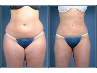Fat freeze only £150!!!