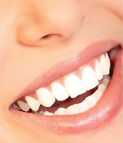 Dental cleaning and laser whitening $140. Whitening $60