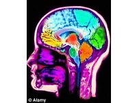 Would you like to take part in brain research?