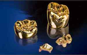 TOP DOLLAR for GOLD & DIAMONDS. CASH LOANS -Todays Gold Buyers London Ontario image 5