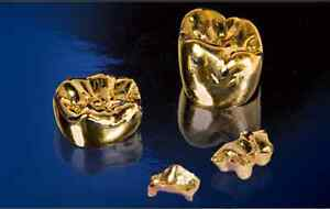 CASH for GOLD- Highest price in town Guaranteed London Ontario image 4