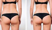 Participants required for clinical study on buttock augmentation