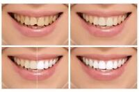 SPECIAL TEETH WHITENING DEAL VANCOUVER  $49