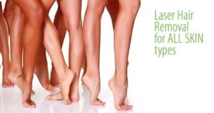 99$ 1 year laser hair removal