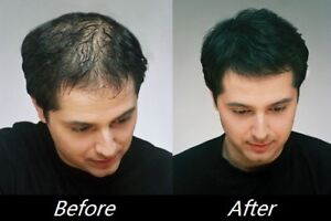 Instant Hair Loss Treatment - 100% Satisfaction guaranteed