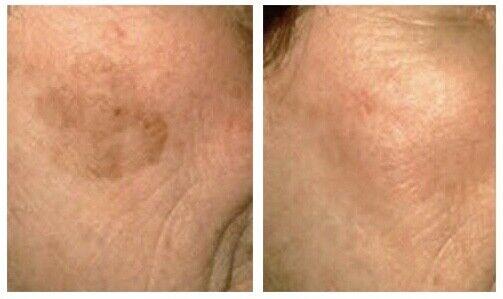 Sun Spot, Age Spot, Brown Spot, Dark Spot, lightening Remover CREAM