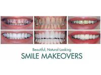 Various Dental Implants by Smile Stylers