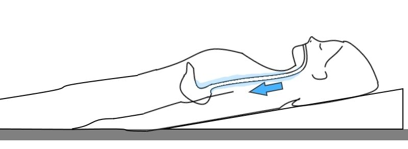 Bed Wedge in use (stops acid seeping up to esophagus).
